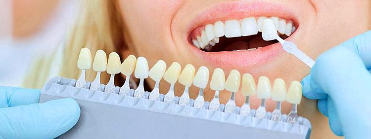 blanqueamiento-zoom-dental-cibao-spa-santiago
