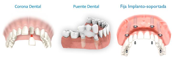 tipos-de-protesis-dentales-coronas