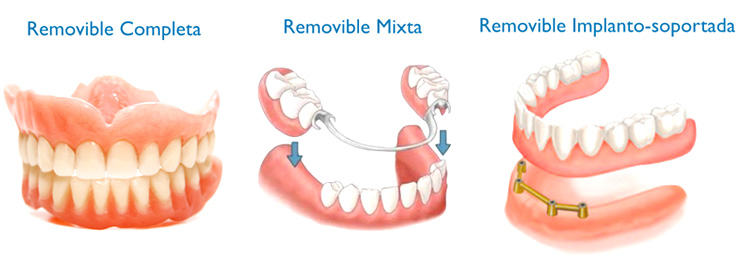 tipos-de-protesis-dentales